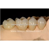 Dental Lab Zirconia Porcelain Denture
