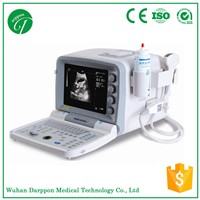 Low Price Portable Ultrasound Machine from China Factory