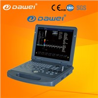 Portable Color Doppler Ultrasound Machine Price Mindray