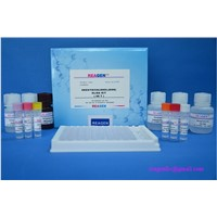 REAGEN Tetracycline Elisa Kit