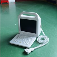 Human Use Laptop Ultrasound Scanner ATNL/51353A LCD