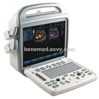 Portable Color Doppler Ultrasound Scanner BENE-3 with 15 Inch LCD Screen