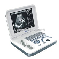 Ultra Slim Notebook Ultrasound Scanner Black & White BW-6 with 10.4 Inch LED Screen & Battery