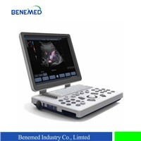 Notebook Color Doppler Ultrasound Scanner BENE-3S with 15 Inch LCD Screen & 3 Probe Connector